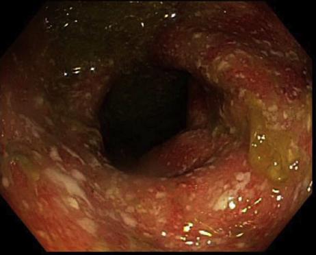 Rectocolitis ulcerativa