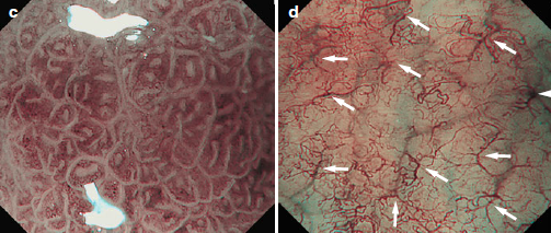 NBI helicobacter