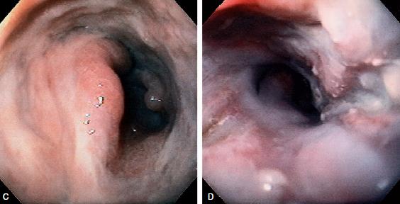 Esofagitis por Citomegalovirus