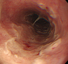 Esofagitis por Herpes