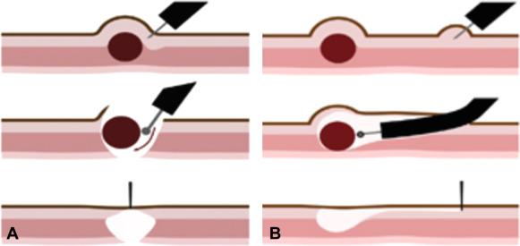 Resección submucosa