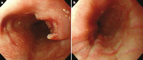 Esofagitis Tuberculosa