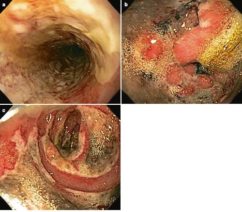 Esofagitis por Ácidos