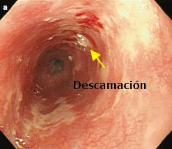 Esofagitis Actínica