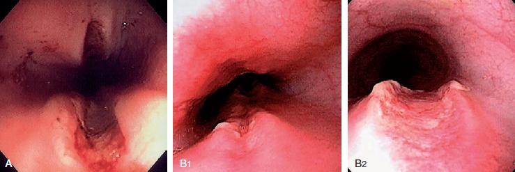 Esofagitis de Contacto