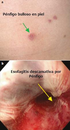 Esofagitis secundaria a Pénfigo