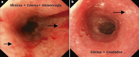 Esofagitis actinica