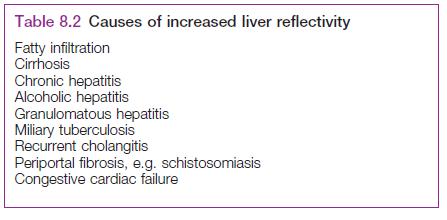 Causas de Hígado Graso