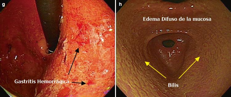 Gastritis Hemorrágica