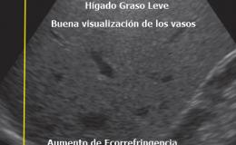 Hígado Graso Leve