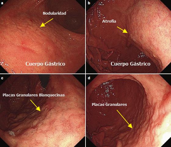 Metaplasia
