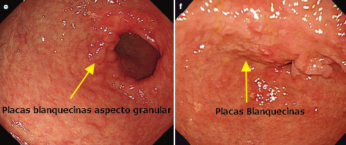 Metaplasia Intestinal