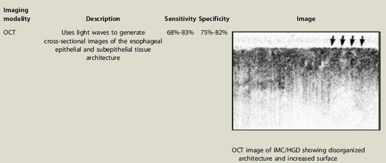 Tomografía de coherencia óptica