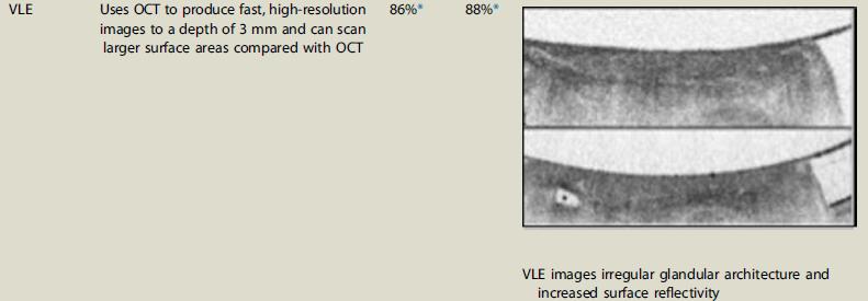 Endomicroscopia láser volumétrica