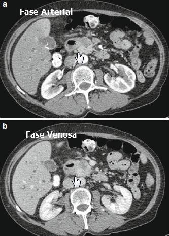 Tomografía contrastada ADC páncreas + dilatación vía biliar