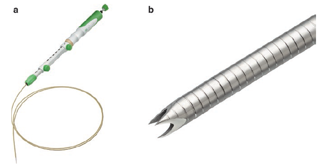 Ultrasonido Endoscopico