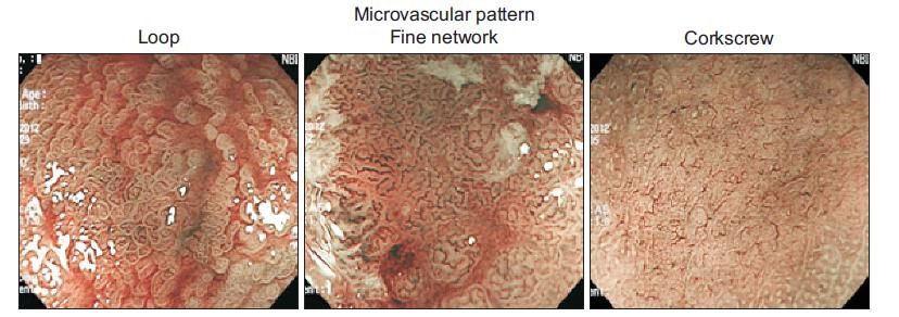Patrón Microvascular