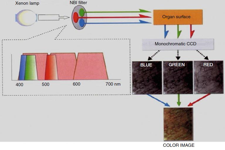 Narrow Band Imaging