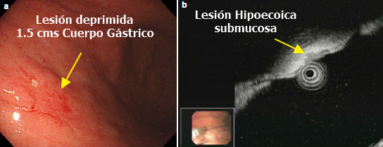Ultrasonido Endoscópico