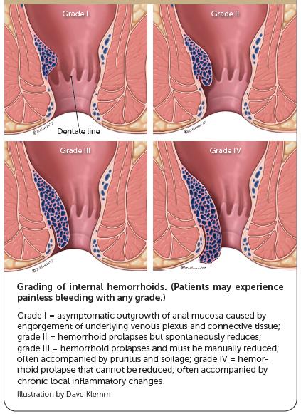 Clasificación de las Hemorroides Internas