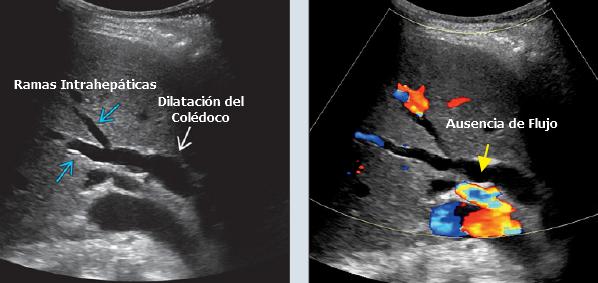 Dilatación de la vía biliar