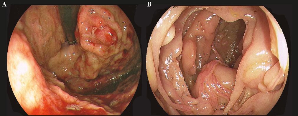 Amiloidosis Gástrica