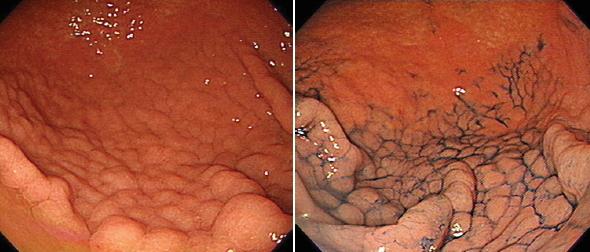 Gastritis Linfocítica
