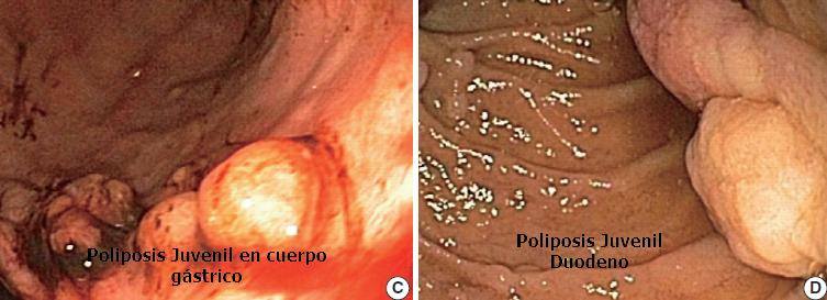 Poliposis