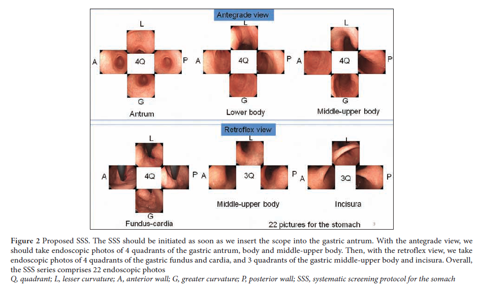 The endoscopic diagnosis of early gastric cancer