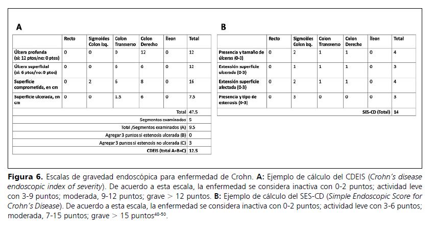 Escalas de Gravedad Endoscópica para Crohn