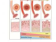 Epidemiology and Natural History of Eosinophilic Esophagitis