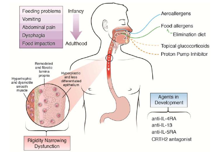 Pathophysiology of Eosinophilic Esophagitis