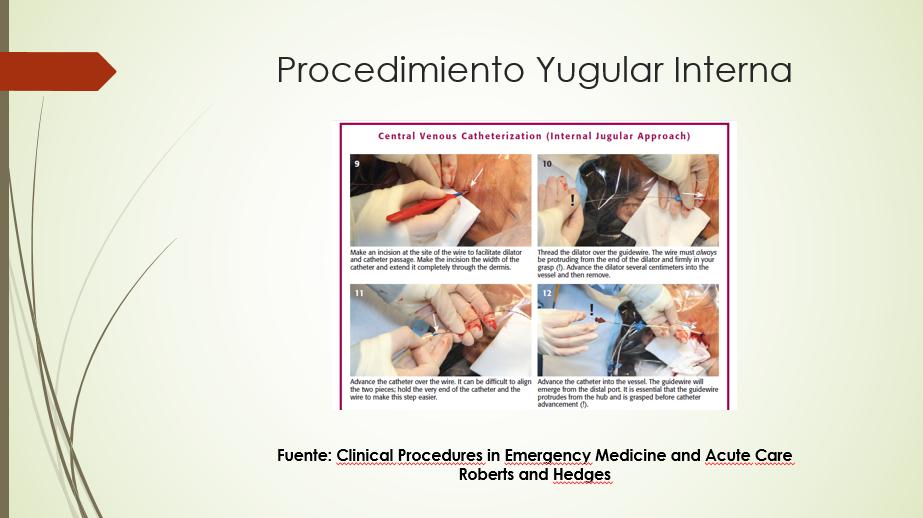 Diapositiva 14
