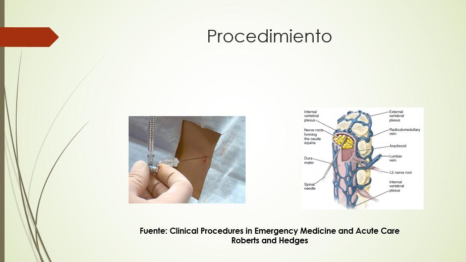 Diapositiva 9