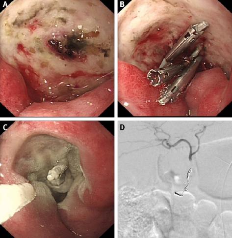 Ulcera Duodenal